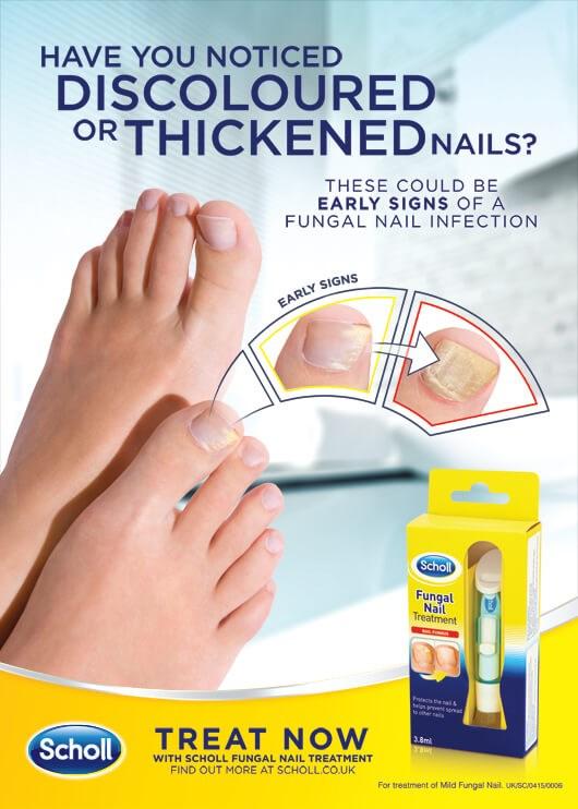 Fungal Nail Treatment- Kills 99.9% of nail fungus!   11street ...